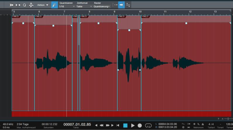 beyerdynamic-Vocal-Bearbeitung-Clean-up