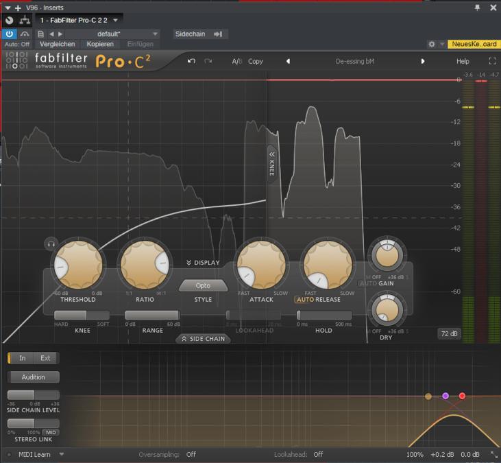 beyerdynamic-Vocal-Aufnahmen-compressor